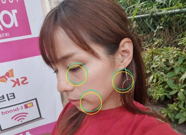 【32歳】韓国でついに美容施術デビューしちゃいました。